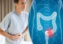 bệnh viêm đại tràng là gì bệnh viêm đại tràng có nguy hiểm không