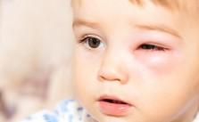 biểu hiện bệnh viêm bờ mi mắt ở trẻ em