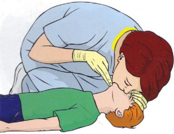 cách hô hấp nhân tạo